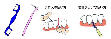 歯と口腔イラスト6